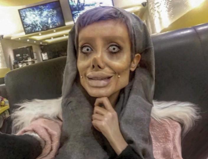 Раскрыт секрет иранки, шокировавшей мир своим лицом а-ля Анджелина Джоли