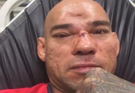 Бразильскому бойцу ММА нанесли страшную травму