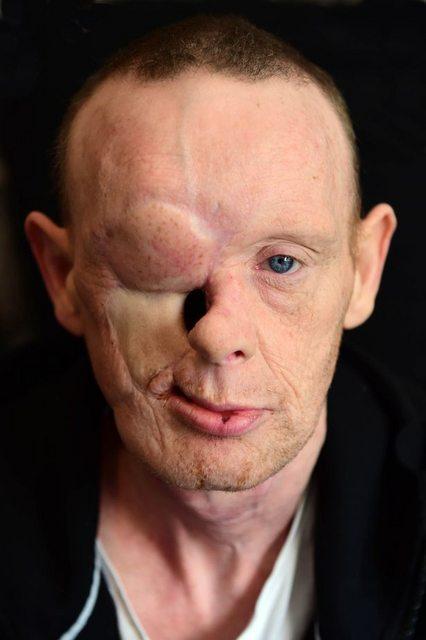 Ошибка врачей. У британца слезились глаза, но ему удалили пол-лица