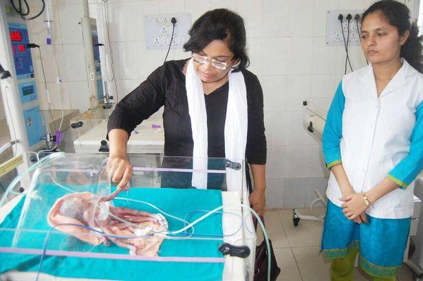 Девочка с 8 конечностями родилась в Индии