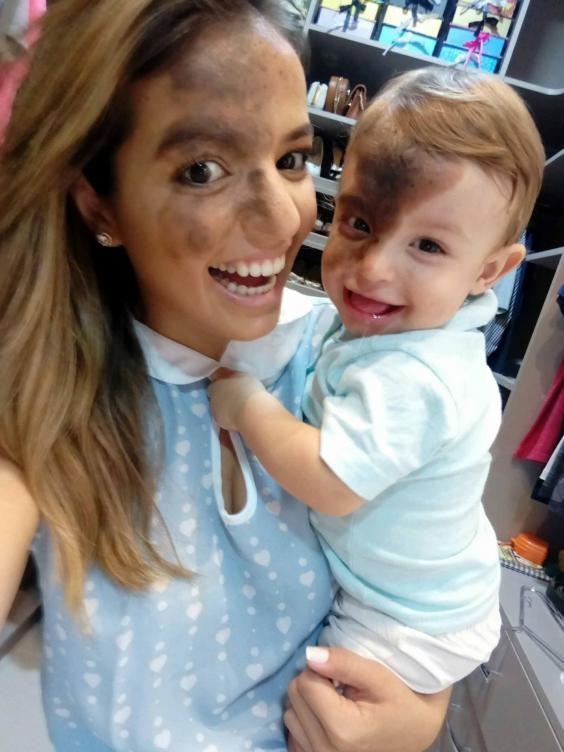 Гордая мать скопировала огромную родинку сына на собственное лицо