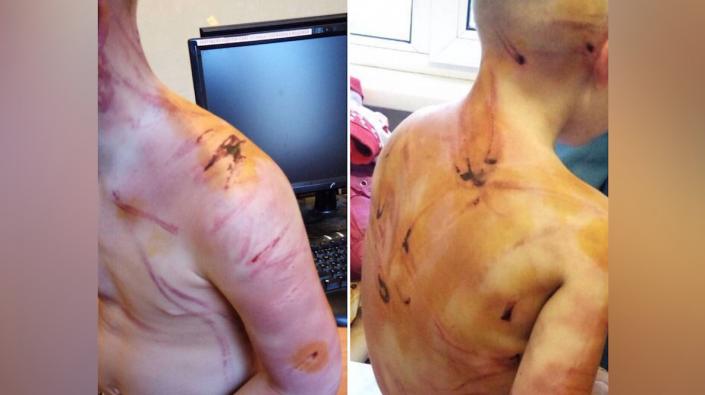 20-летний отчим жестоко истязал 4-летнюю падчерицу зарядкой для телефона