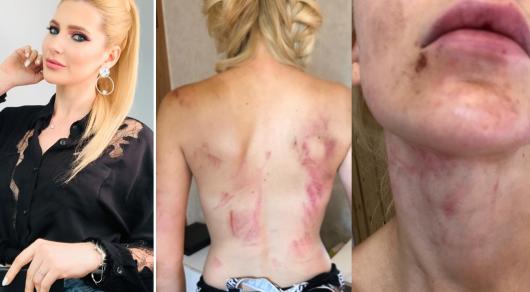 Избиение певицы Ксении Ашигалиевой: муж ответил на обвинения