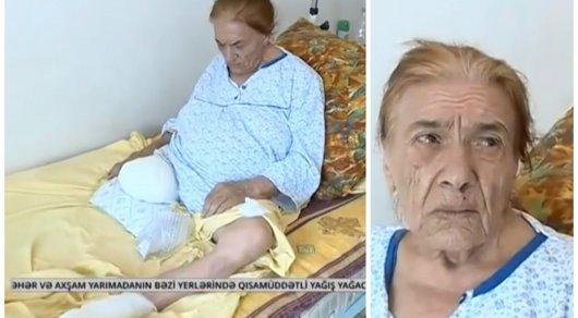 В Баку пациентке ампутировали здоровую ногу вместо больной