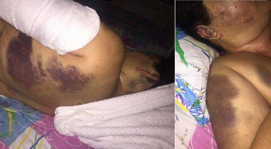 Похитители жестоко избили 57-летнюю жительницу Алматинской области