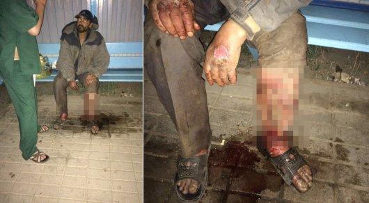 У акимата Сатпаева живет бездомный мужчина с гниющей ногой