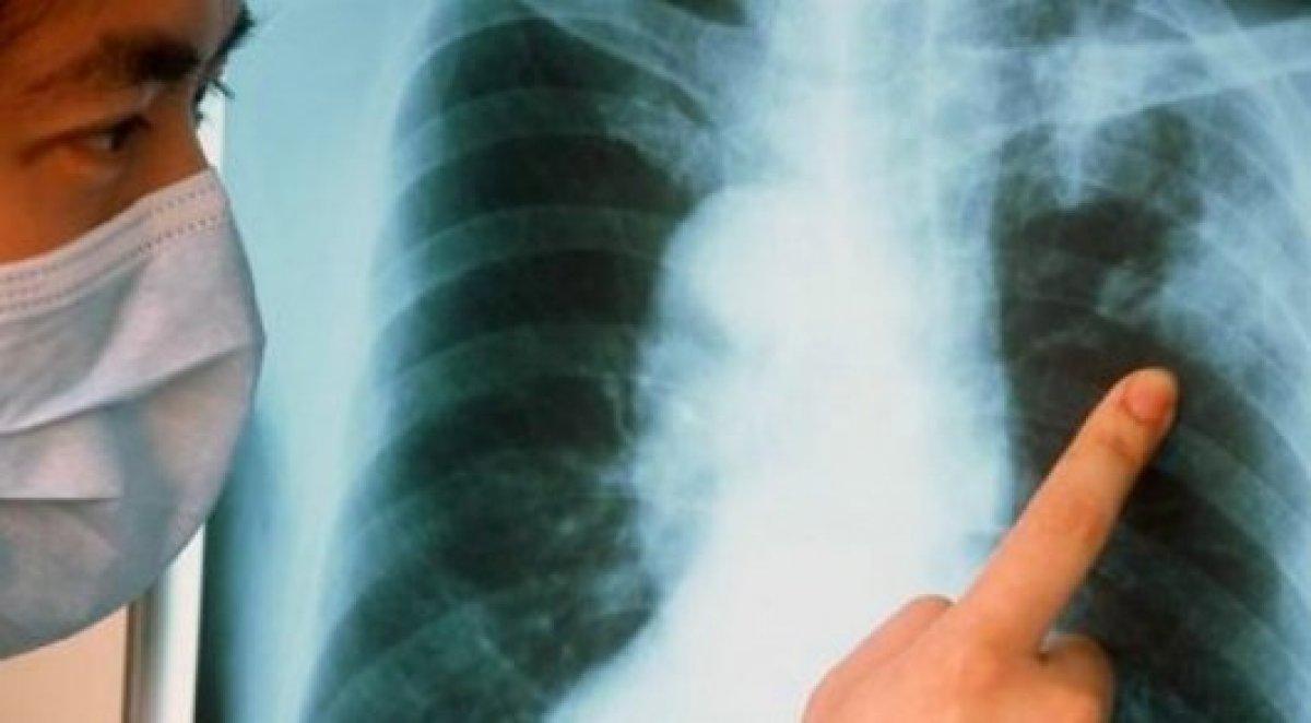tuberculosis in peru essay