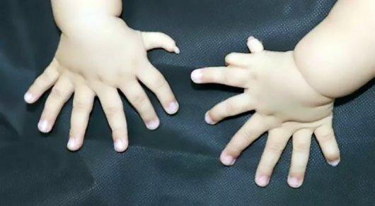В Китае появился на свет ребенок с 31 пальцем