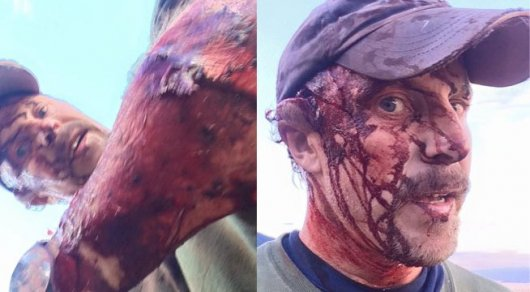 страшные раны фото