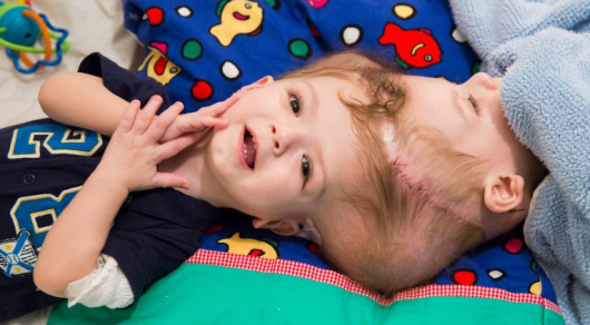 ВСША прошла операция поразделению сиамских близнецов собщей головой