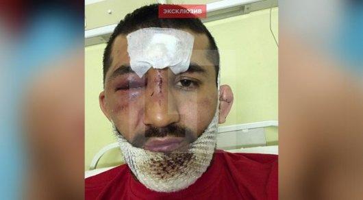 Детали нападения наМирзаева: самбиста пытались задушить исломать ему ноги