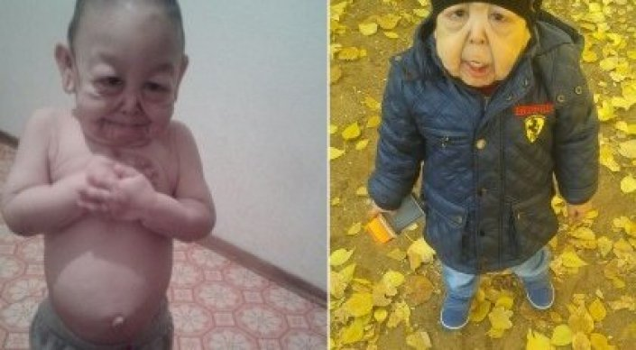 Дуйсенова пообещала помочь 4-летнему мальчику с синдромом вялой кожи