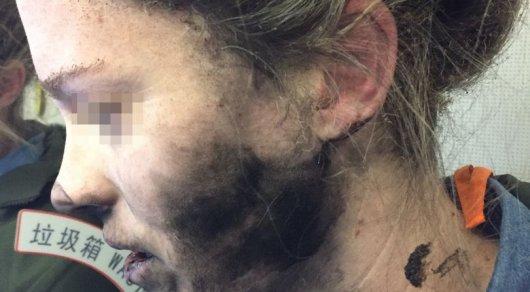 Упассажирки самолета, летевшего вАвстралию, взорвались наушники