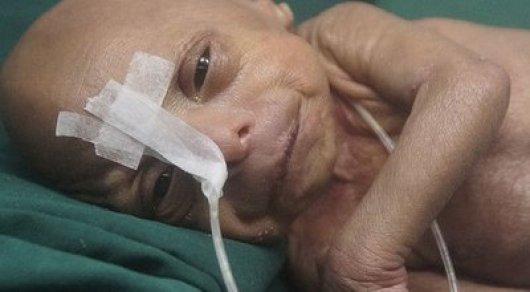 ВБангладеш родился 2-ой Бенджамин Баттон— необычайный инцидент