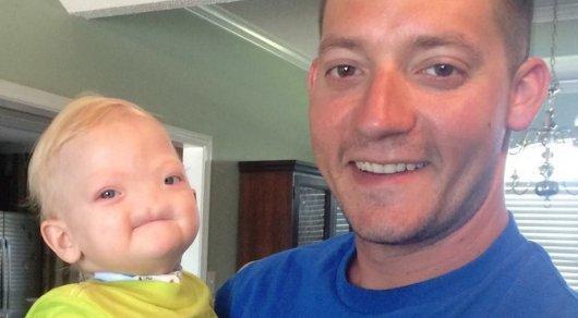 Родившийся без носа мальчик умер спустя два года в США