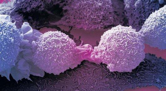 Ученые разработали самые маленькие в мире лазеры для борьбы с раком