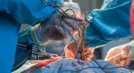 Россиянину удалили опухоль весом 37 килограммов