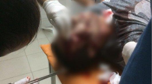 Полиция разыскивает водителя Mercedes, сбившего парня в Караганде