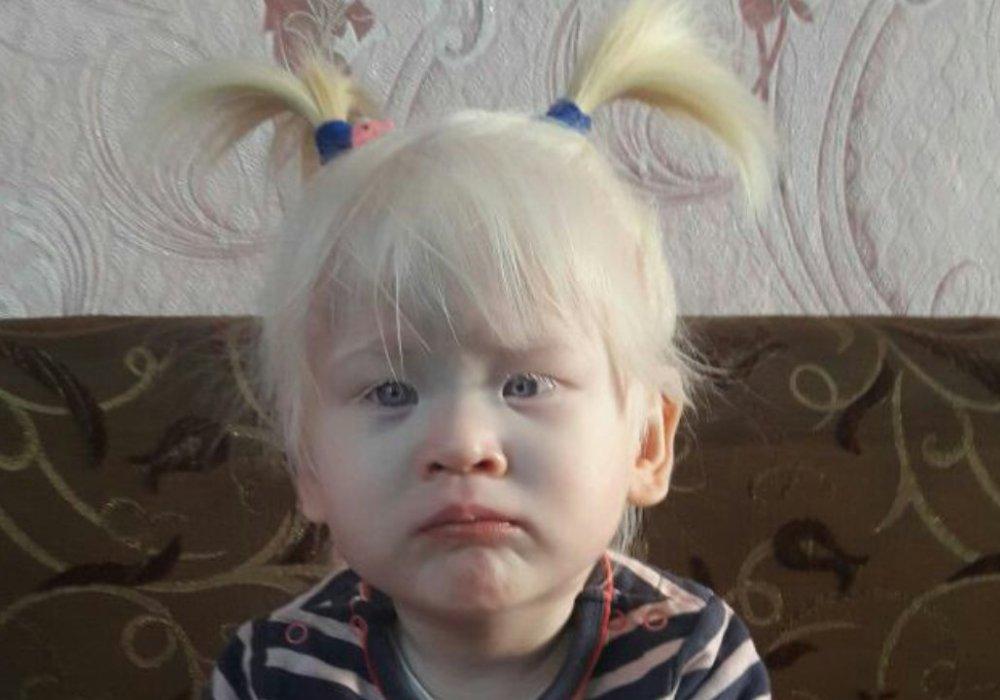 Одна на миллион: как живет девочка-альбинос из Уральска