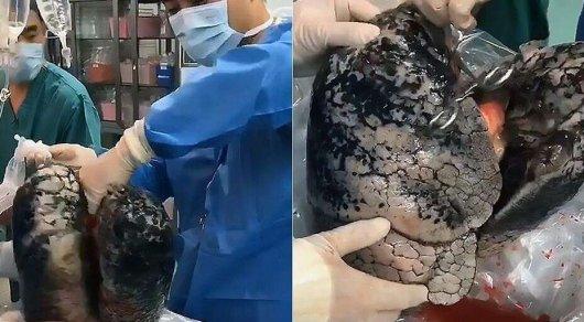 Хирурги показали, как выглядят легкие человека, курившего 30 лет - © AsiaWire