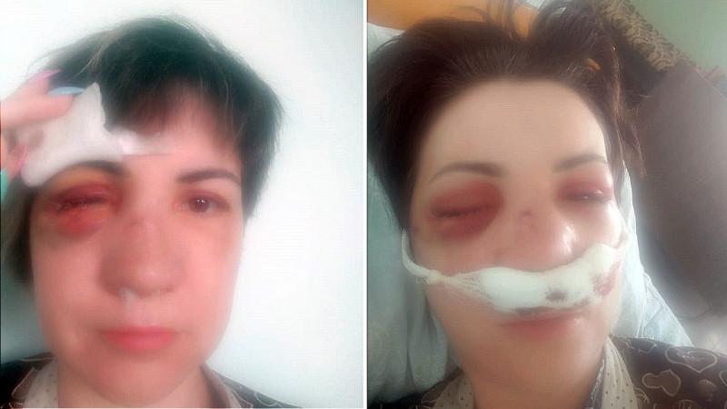 Женщина лишилась глаза и стала инвалидом после нападения бывшего мужа в Сарани