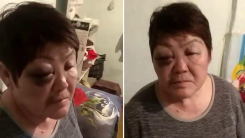 """""""Угрожал сжечь меня и детей"""": бывший муж избил женщину в Алматинской области"""