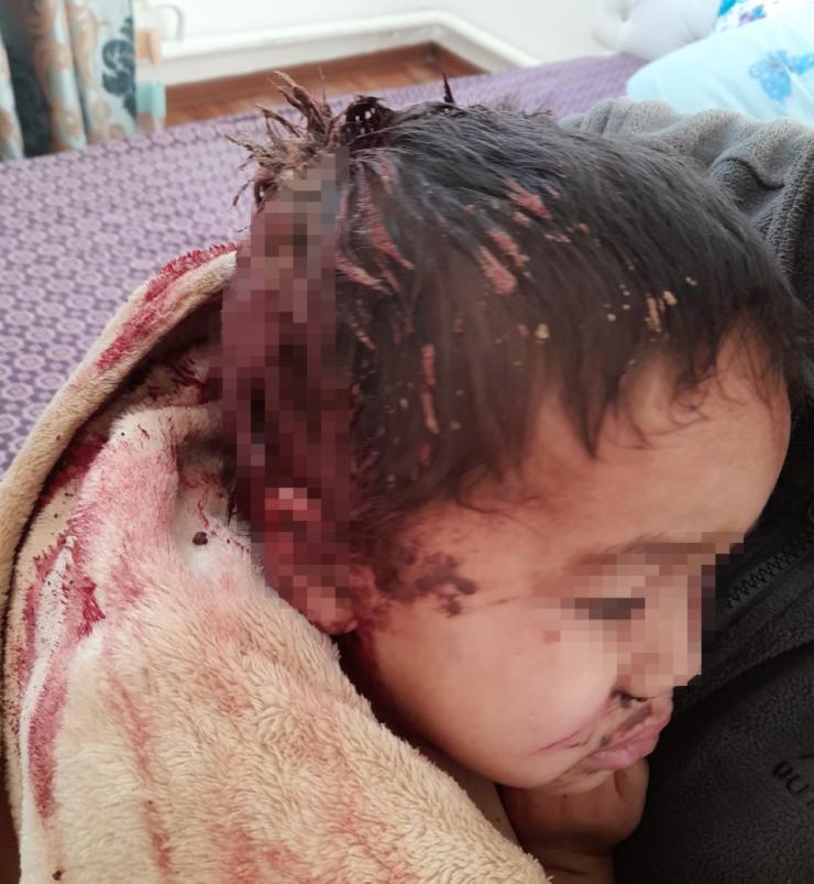 В Атырау собака напала на 2-летнего малыша 3